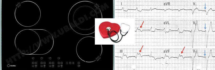 objet connect ou lectrom nager et pacemaker y a t il un danger. Black Bedroom Furniture Sets. Home Design Ideas
