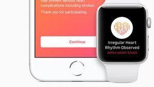 Apple et Stanford étudient les arythmies cardiaques avec la Watch